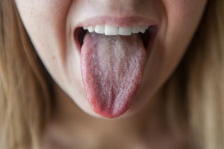 Белый налет на языке у взрослых - причины, лечение, симптомы 2