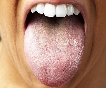 Белый налет на языке у взрослых - причины, лечение, симптомы 3