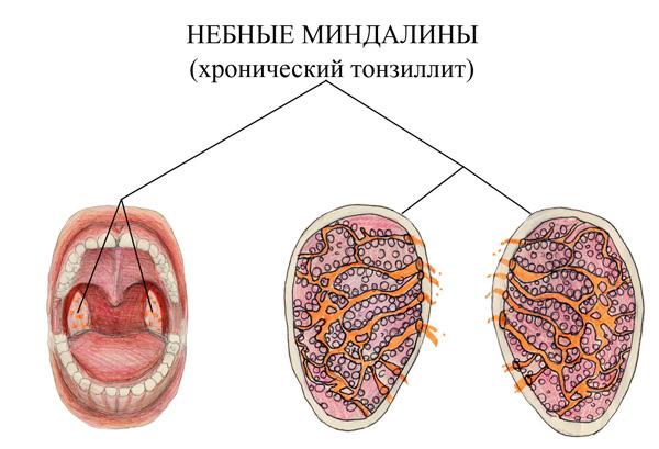 Тонзиллит симптомы и лечение у взрослых - описание, причины 2