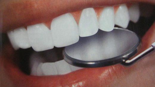 Как быстро отбелить зубы без вреда в домашних условиях