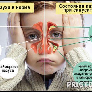 Синусит симптомы и лечение у взрослых и детей 1