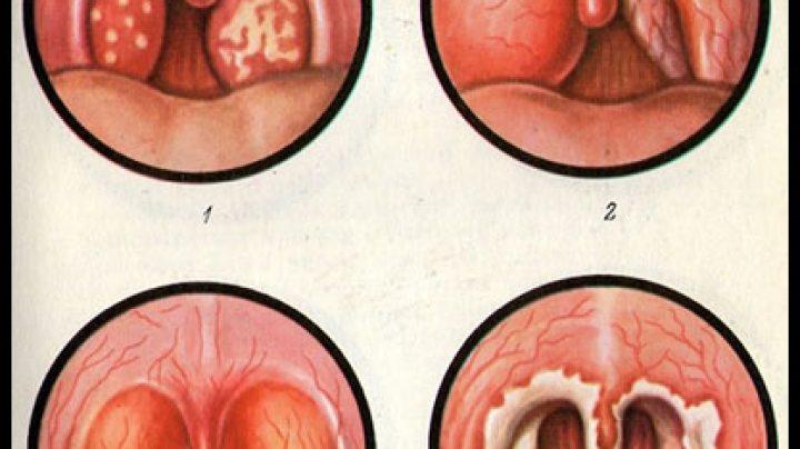 Как беременным лечить тонзиллит 60