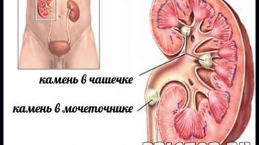 Почки болят - симптомы, чем лечить, народные средства 1