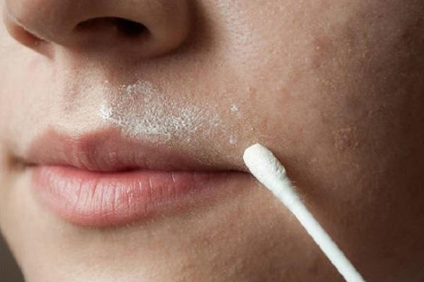 Как в домашних условиях обесцветить волосы над губой