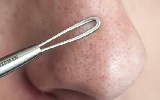 Как убрать черные точки на носу в домашних условиях - быстро и эффективно 1