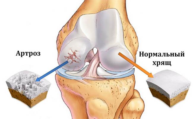 Артроз суставов - симптомы и лечение, диагностика, описание 2