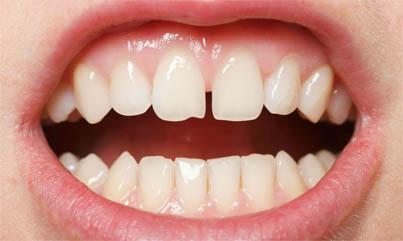 Как убрать щель между передними зубами, что можно сделать 2