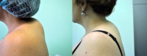Как убрать горб на спине - быстро и эффективно 1