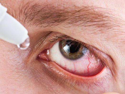 Кератит - симптомы и лечение, причины возникновения 2