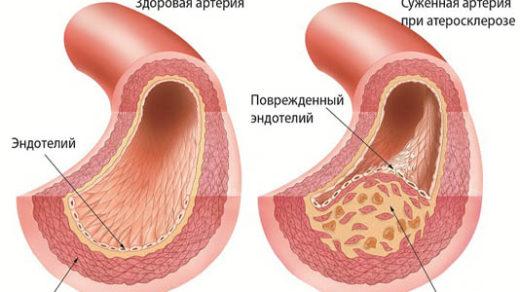 Атеросклероз сосудов головного мозга - симптомы и лечение 1
