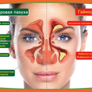 Гайморит - симптомы, разновидности, лечение в домашних условиях 2
