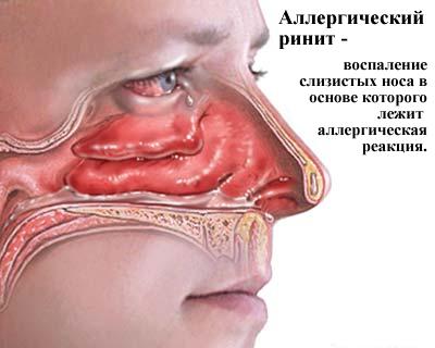 Аллергический ринит - симптомы и лечение, виды заболевания 1