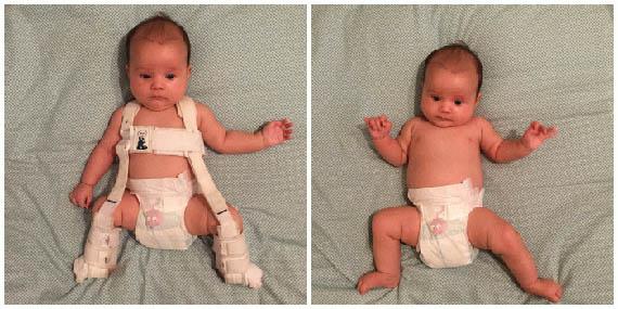Дисплазия тазобедренных суставов у ребенка - причины и лечение 1