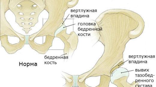 Дисплазия тазобедренных суставов у ребенка - причины и лечение 3
