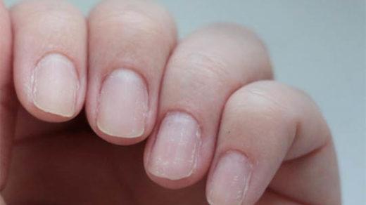 Ломкие ногти на руках - причины и лечение, как начать восстановление 1