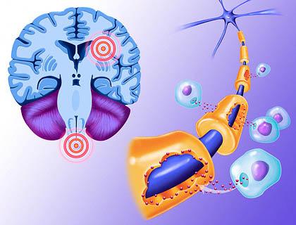 Рассеянный склероз - симптомы, причины, лечение, основные типы 2