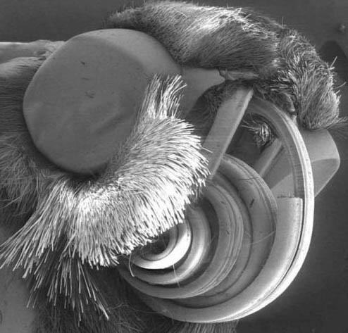 Микробы под микроскопом для детей - картинки и фото не для слабонервных 5
