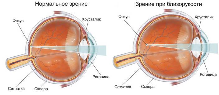 Близорукость - симптомы, диагностика и лечение, профилактика 1