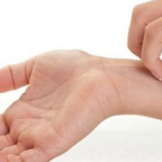 Аллергия на руках и ее основные причины - описание и симптомы 1