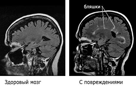 Рассеянный склероз - симптомы, лечение, диагностика и факторы риска 1