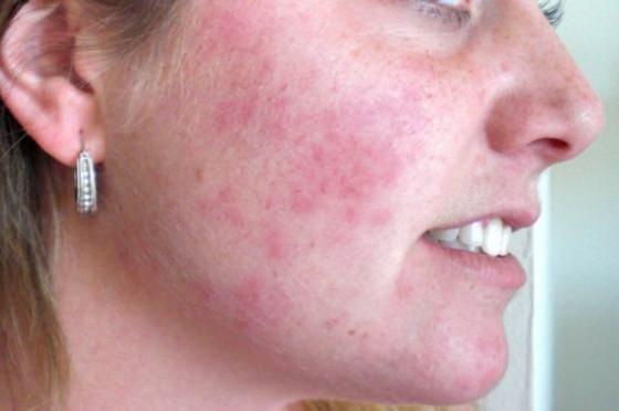 как лечить аллергию на лице у взрослого