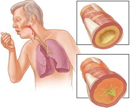 5 эффективных средств для лечения бронхита - народные методы 1