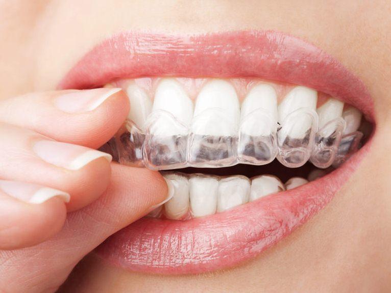 Как отбелить зубы в домашних условиях - эффективные способы 1