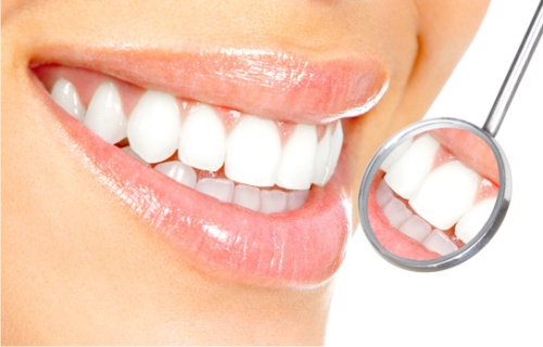 Как отбелить зубы в домашних условиях - эффективные способы 2