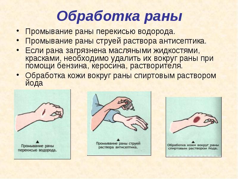 Как правильно обработать рану - последовательность действий, помощь 2