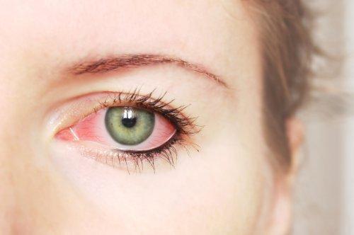 Что вызывает раздражение глаз Основные причины раздражения глаз 1