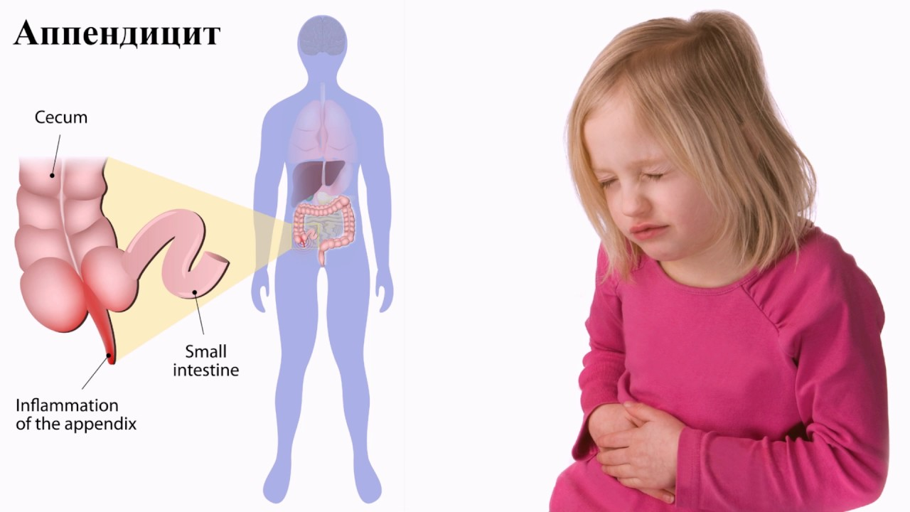 Аппендицит у ребенка - 6 важных симптомов, основные причины 1