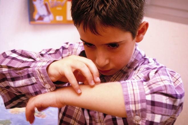 Аллергия на сладкое у детей - причины, симптомы, что делать 2