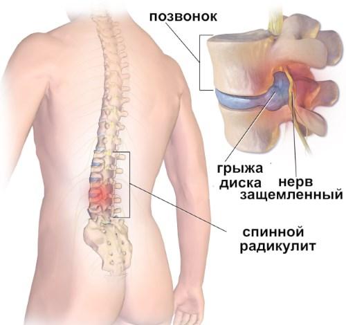 Лечение радикулита и остеохондроза народными способами 1