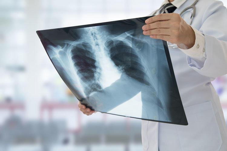 От простуды до пневмонии - лечение воспаления легких, виды 2