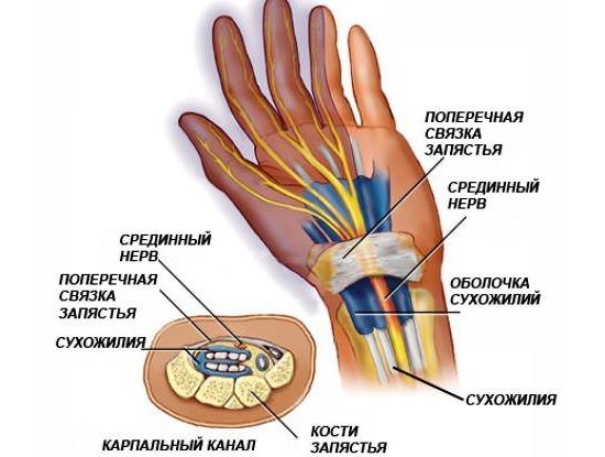 Что такое туннельный синдром Причины и упражнения для рук 2