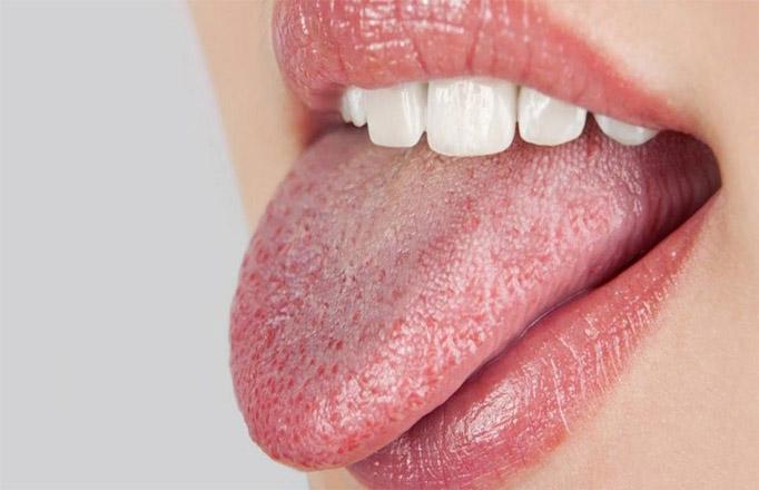 Как избавиться от сухости во рту Способы и советы 1