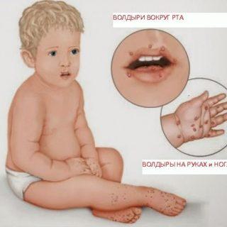 Вирус коксаки симптомы у детей фото