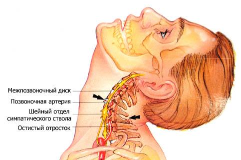 Остеохондроз шейного отдела позвоночника симптомы и лечение 2