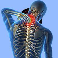 Остеохондроз шейного отдела позвоночника симптомы и лечение 3