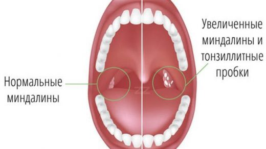 Тонзиллит симптомы и лечение у взрослых - описание, причины 1