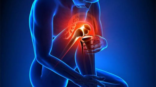 Артроз суставов - симптомы и лечение, диагностика, описание 1