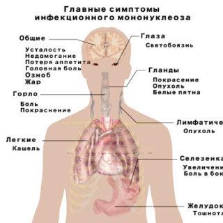 Инфекционный мононуклеоз у детей - симптомы и лечение 2