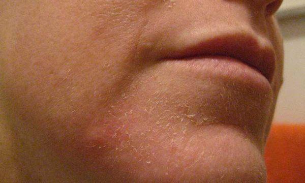 Покраснение и шелушение кожи на лице - что делать, лечение 1
