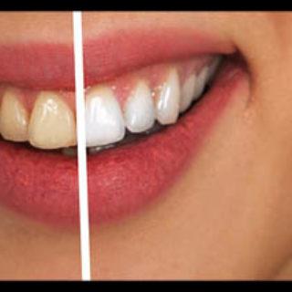 Как правильно ухаживать за зубами - рекомендации и советы 1