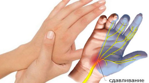 Немеют руки, что делать Симптомы и причины, какого врача посетить 3
