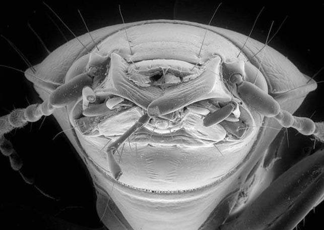 Микробы под микроскопом для детей - картинки и фото не для слабонервных 1