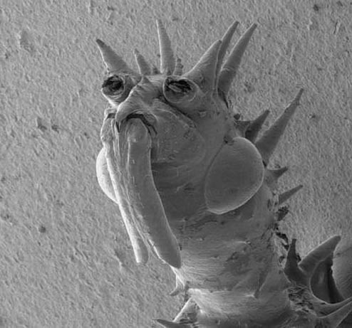 Микробы под микроскопом для детей - картинки и фото не для слабонервных 9