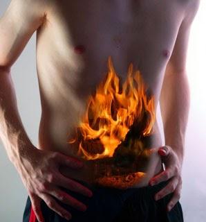 Как вылечить изжогу навсегда в домашних условиях - причины изжоги 3