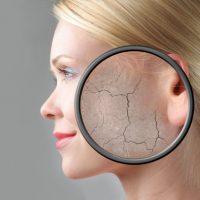Как избавиться от сухости кожи - причины, методы борьбы, маски 2