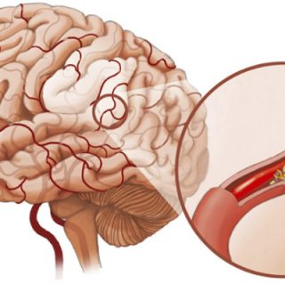 Спазм сосудов головного мозга - причины, симптомы, лечение 2